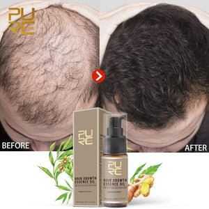 Oiko Store  PURC Hot sale Fast Hair Growth Essence Oil Hair Loss Treatment Help for hair Growth Hair Care 20ml