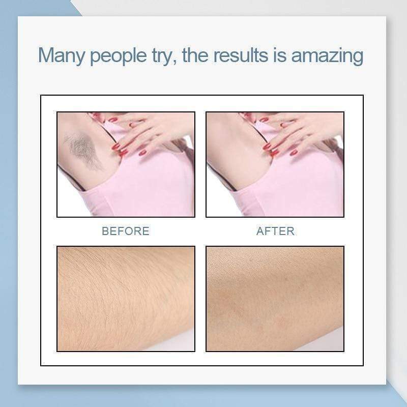 Rosalind Hair Removal Cream Underarm Hand Leg Body Painless Effective