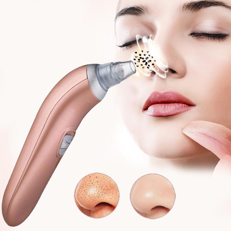 Moisturizing Blackhead Remover & Suction Spot Cleaner