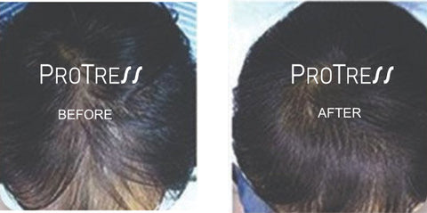 treatment for hair loss caused by extensions