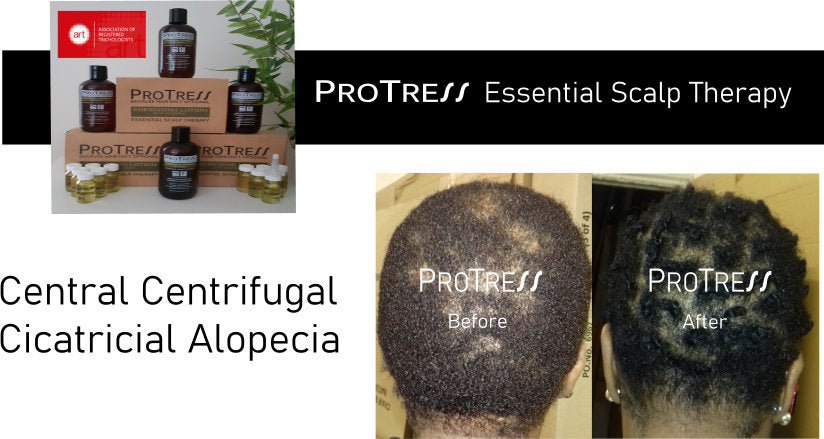 Central centrifugal cicatricial alopecia treatment