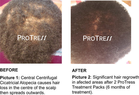 treatment for central centrifugal cicatricial alopecia