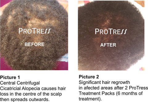 treatment for thinning dreadlocks
