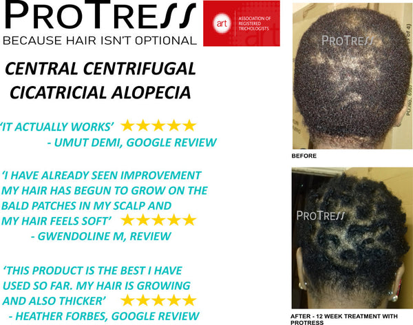 Effective treatment for central centrifugal cicatricial alopecia