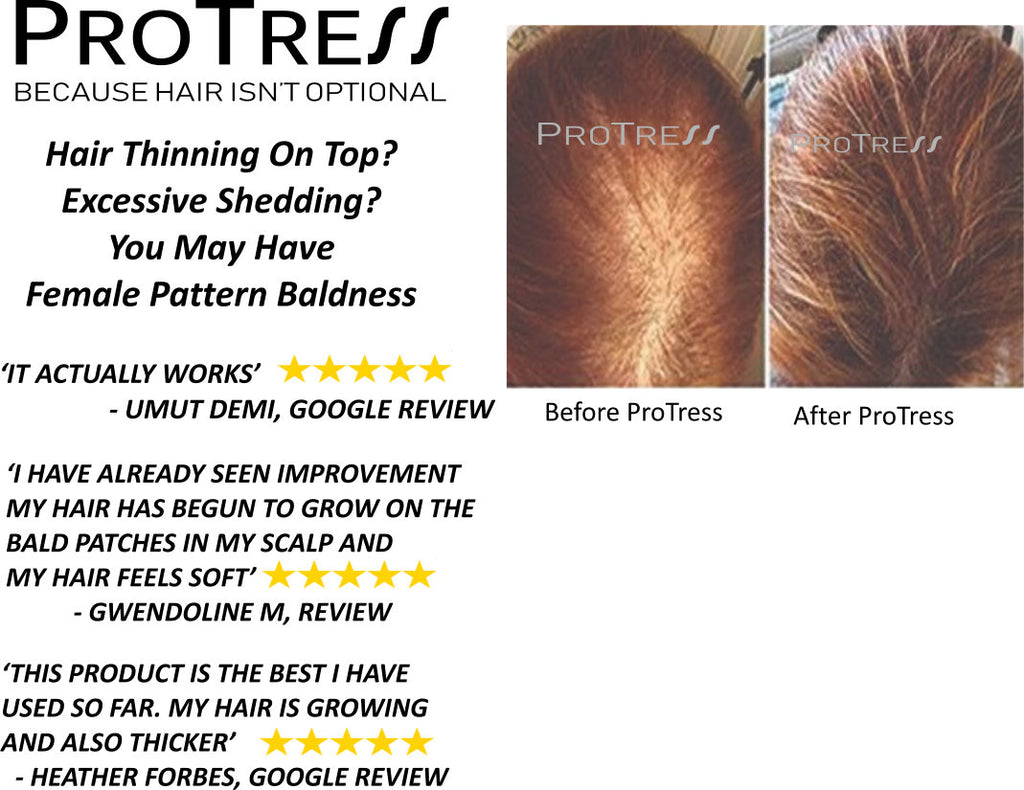 What is the cause of female pattern baldness