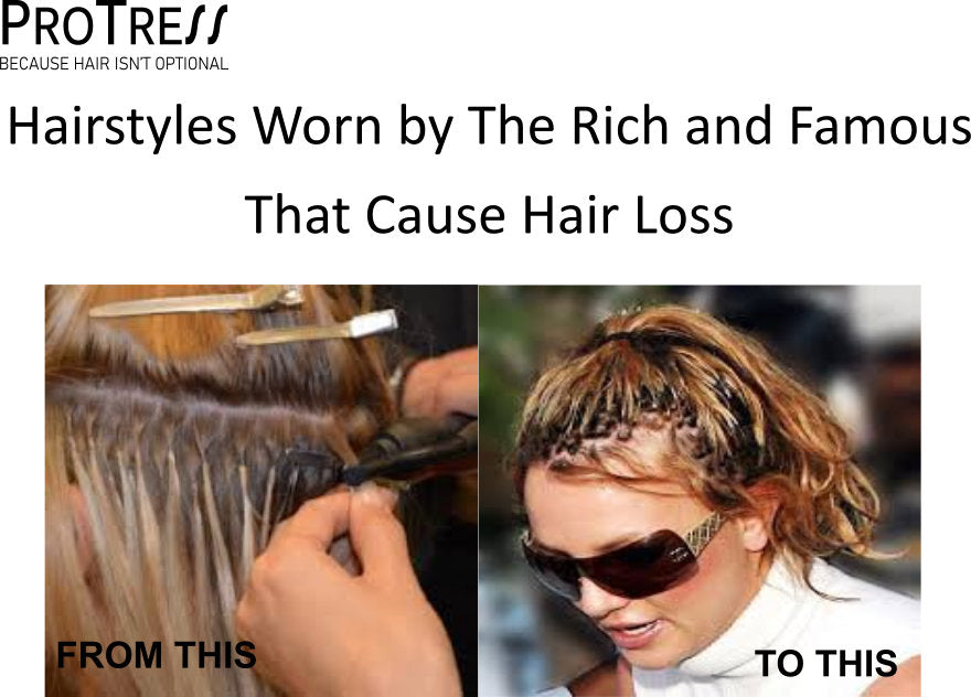 Hairstyles Worn by The Rich and Famous That Cause Hair Loss