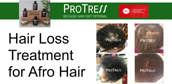 hair loss treatment for afro hair before and after picture