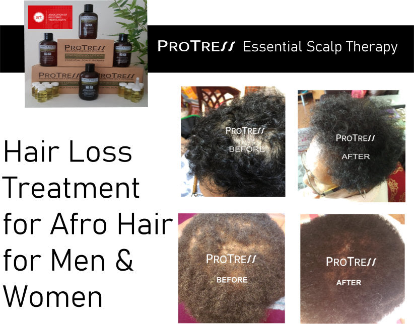 hair loss treatment for afro hair for men and women