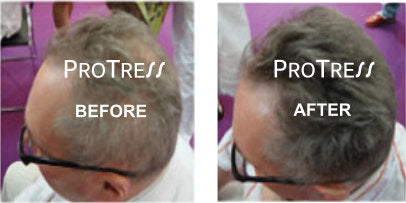 Male Pattern Baldness treatment before after
