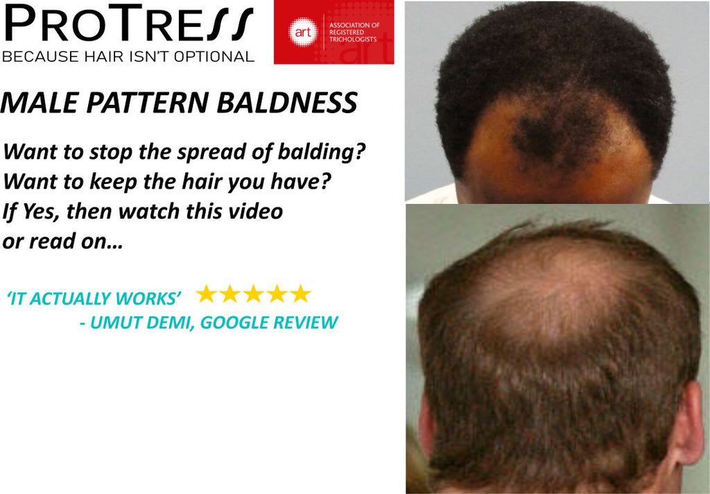 Male pattern baldness treatment for afro hair