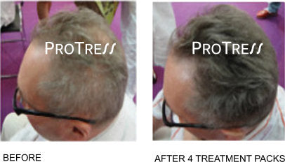 effect of COVID 19 on your hair