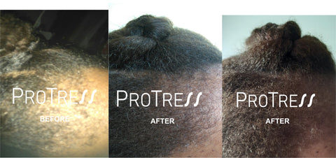 traction alopecia treatment