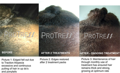 effective treatment for traction alopecia