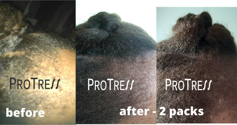 Traction Alopecia before after