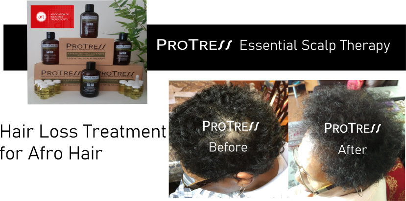 hair loss treatment for afro hair