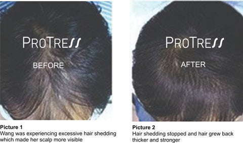 hair loss treatment for Asian and European hair