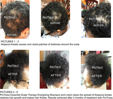 effective treatment for alopecia areata