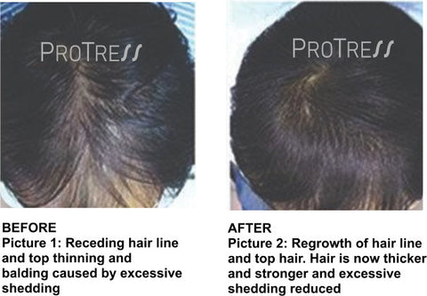 effects of COVID 19 on hair