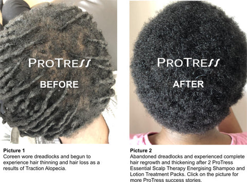 dreadlocks cause traction alopecia