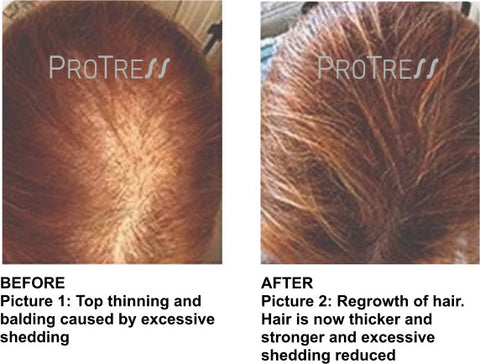 thinning hair female pattern baldness treatment