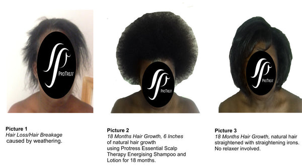 proven results - thin afro hair becoming thick after using ProTress