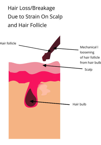 hair follicle separating from hair bulb due to strain causing hair loss and breakage