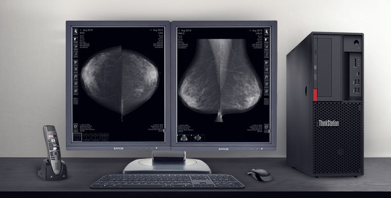 7 Considerations When Choosing a Mammography Display