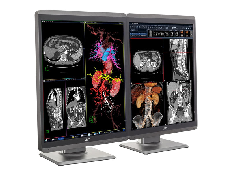 "JVC CL-S300 3MP 21"" Color LED General Radiology Diagnostic Display Monitors (CL-S300)"
