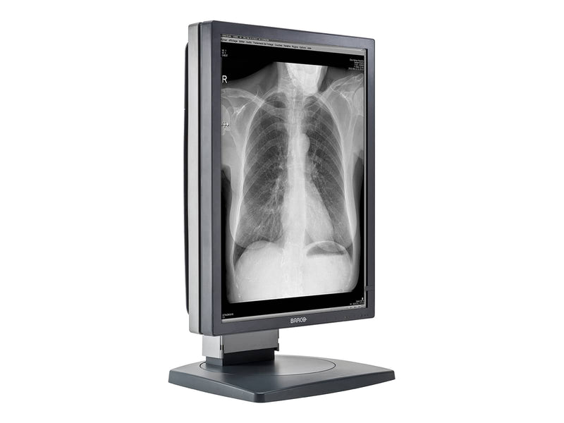 Barco Coronis MDCG-2121 2MP 21'' Grayscale Diagnostic Radiology PACS Monitor (K9601659)