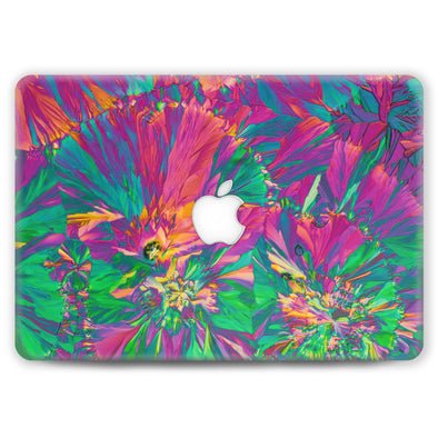 Easter Sunday - MacBook Case