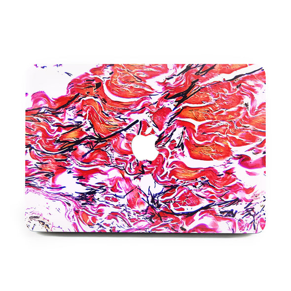 Elastic Black - MacBook Case
