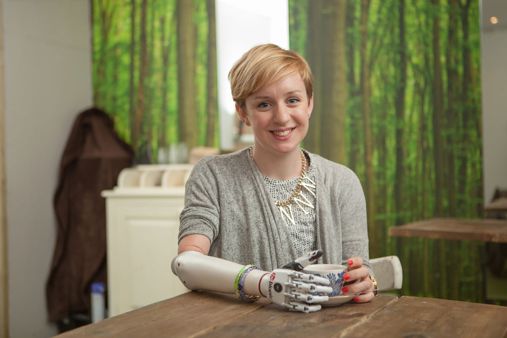 "British woman receives ""world's most lifelike bionic hand"""