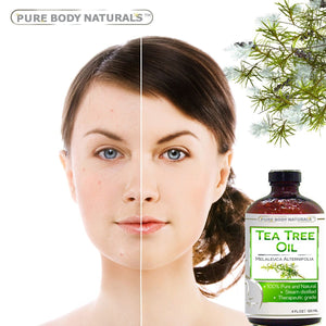 [4 fl oz Bottle] Pure Body Naturals 100% Pure Australian Tree Essential Oil , 4 Fl. Oz.