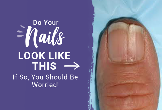 So Your Nails Look Like This? If So You Should Be Worried!