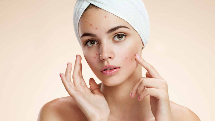 Natural Remedies For Acne Prone Skin