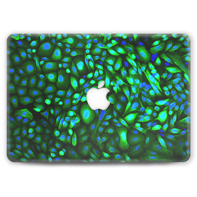 Skinny Peacock - MacBook Case
