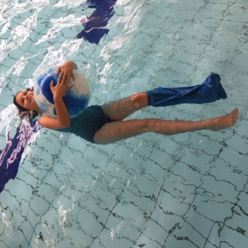 Kirstin's daughter wearing her short leg cast cover in the swimming pool
