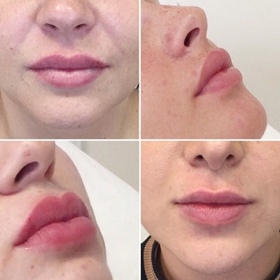 Dr Harris' Nonsurgical Lip Lift (NLL)