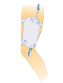 E&E Urine Leg Bag - Catheter Leg Bag Holder Straps Button Type