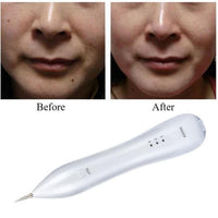 Beauty Mole Removal Spot / Wart / Tattoo Ion Pen - ModernKitchenMaker.com