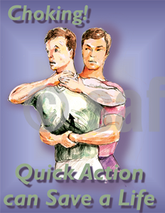 Choking Quick Action Can Save A Life - Safety Poster General