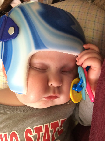 What in the world is plagiocephaly?