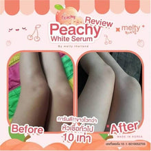 Peachy Body White Serum ( Korea) - Nicci Skin Care