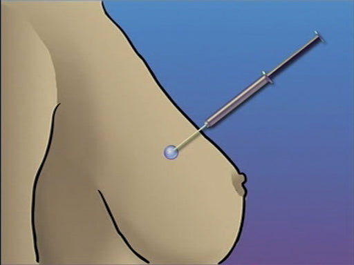 Breast Biopsy Needle
