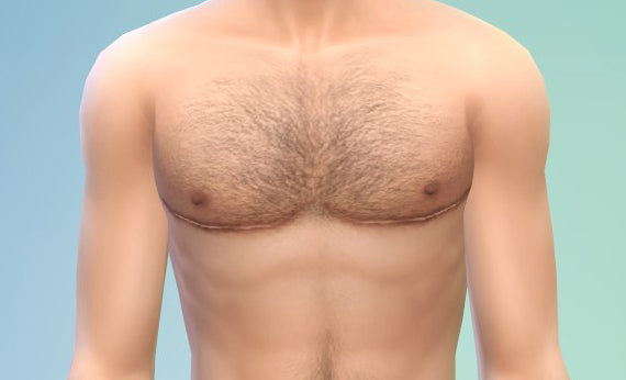 FTM Chest Surgery Tips