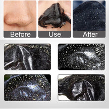 GlowUp™ Charcoal Blackhead Removal Mask