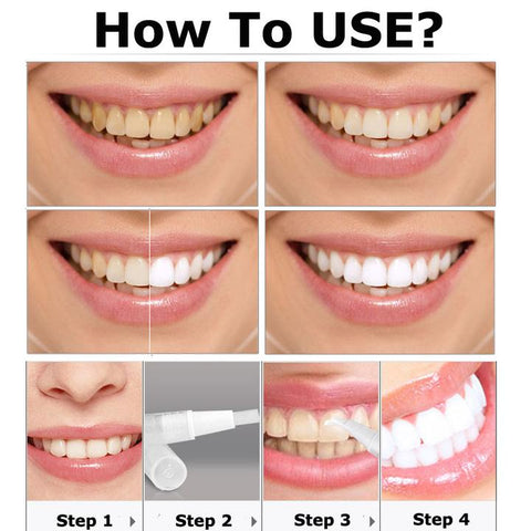 Steps to Veneers