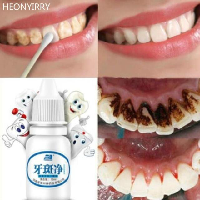 WATEETH™ : Teeth Whitening Water