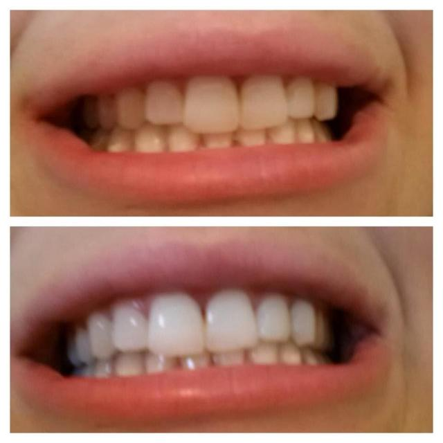 WHITEETH™ : Natural Bamboo Charcoal Teeth Whitening Toothpaste