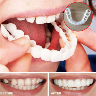 MySmile™ : Perfect Smile Veneers